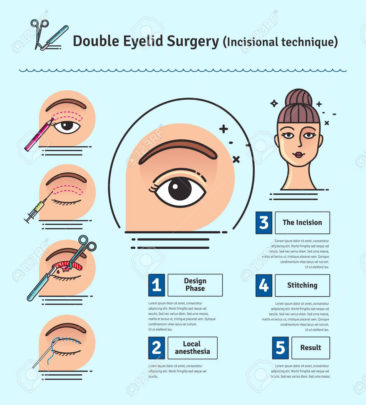 Vector Illustrated set with double eyelid surgery  Infographics