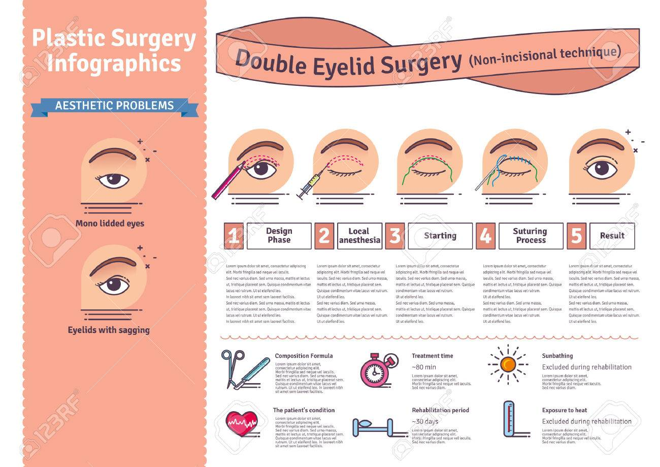 Vector Illustrated set with double eyelid surgery  Non-incisional