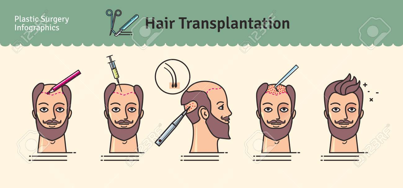 Vector Illustrated Set With Hair Transplant Surgery. Infographics ...