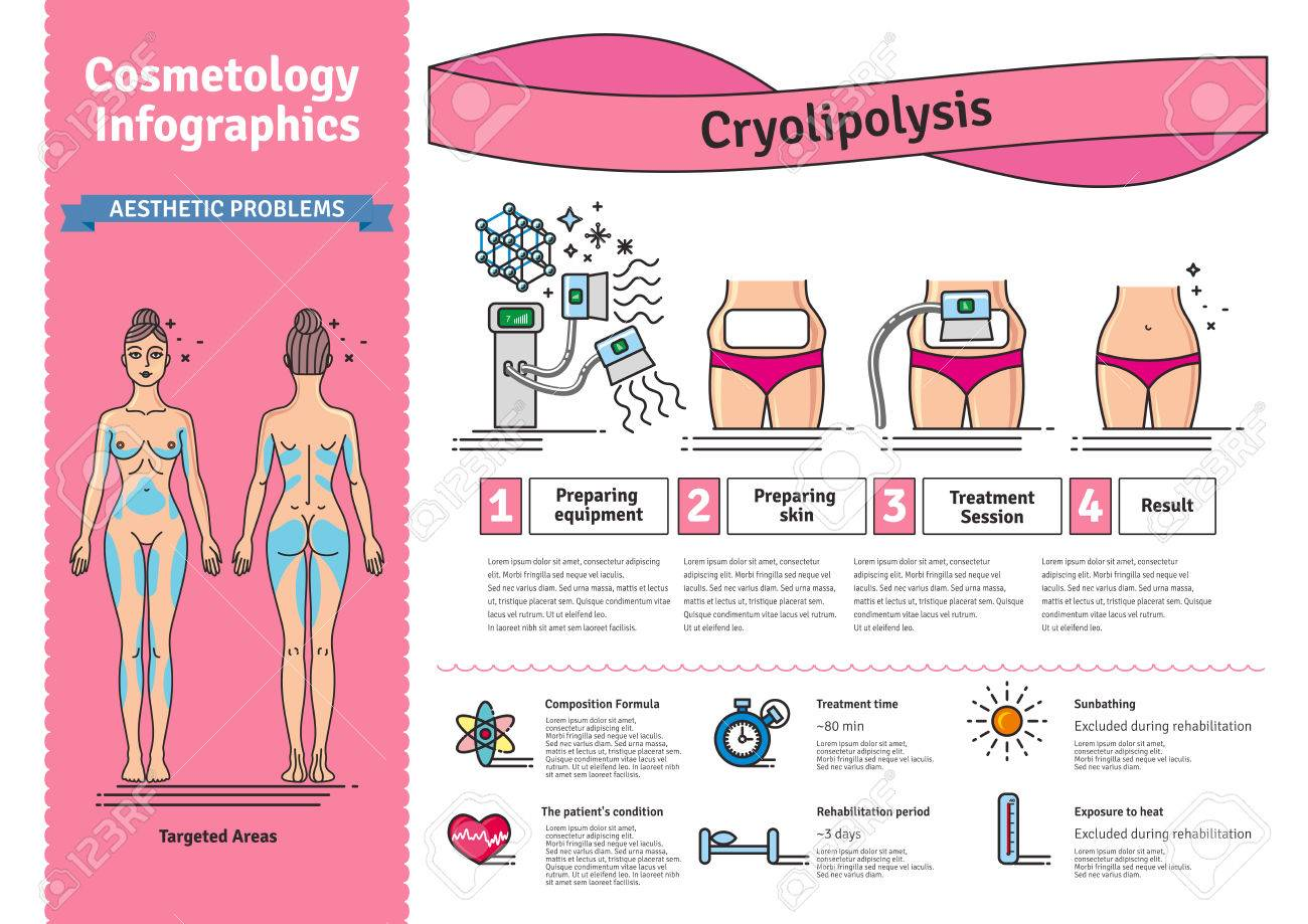 Vector Illustrated set with salon cosmetology Cryolipolysis treatment. Infographics with icons of medical cosmetic procedures for body. - 70962019