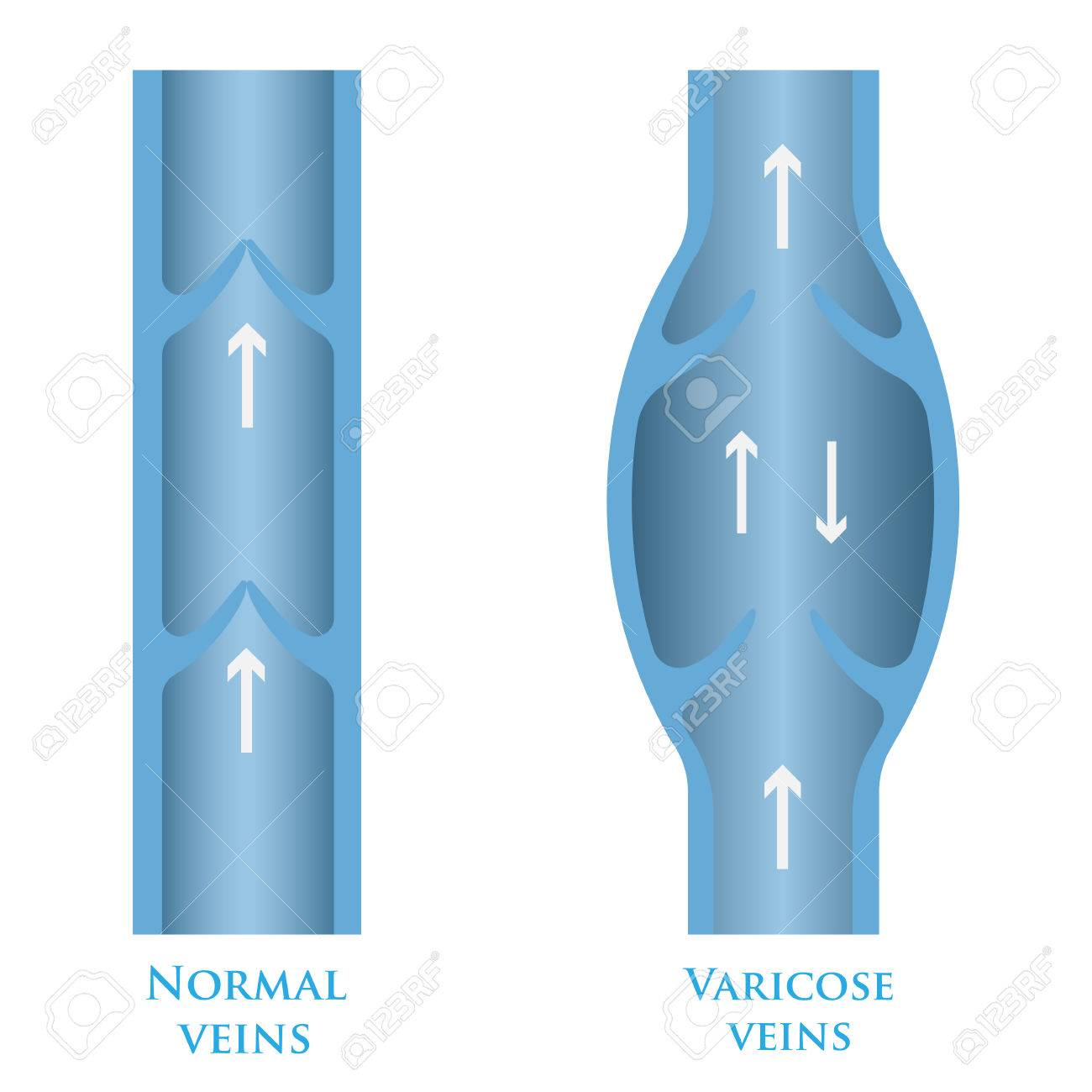 Vector Illustration Of A Varicose Vein And Normal Royalty Free