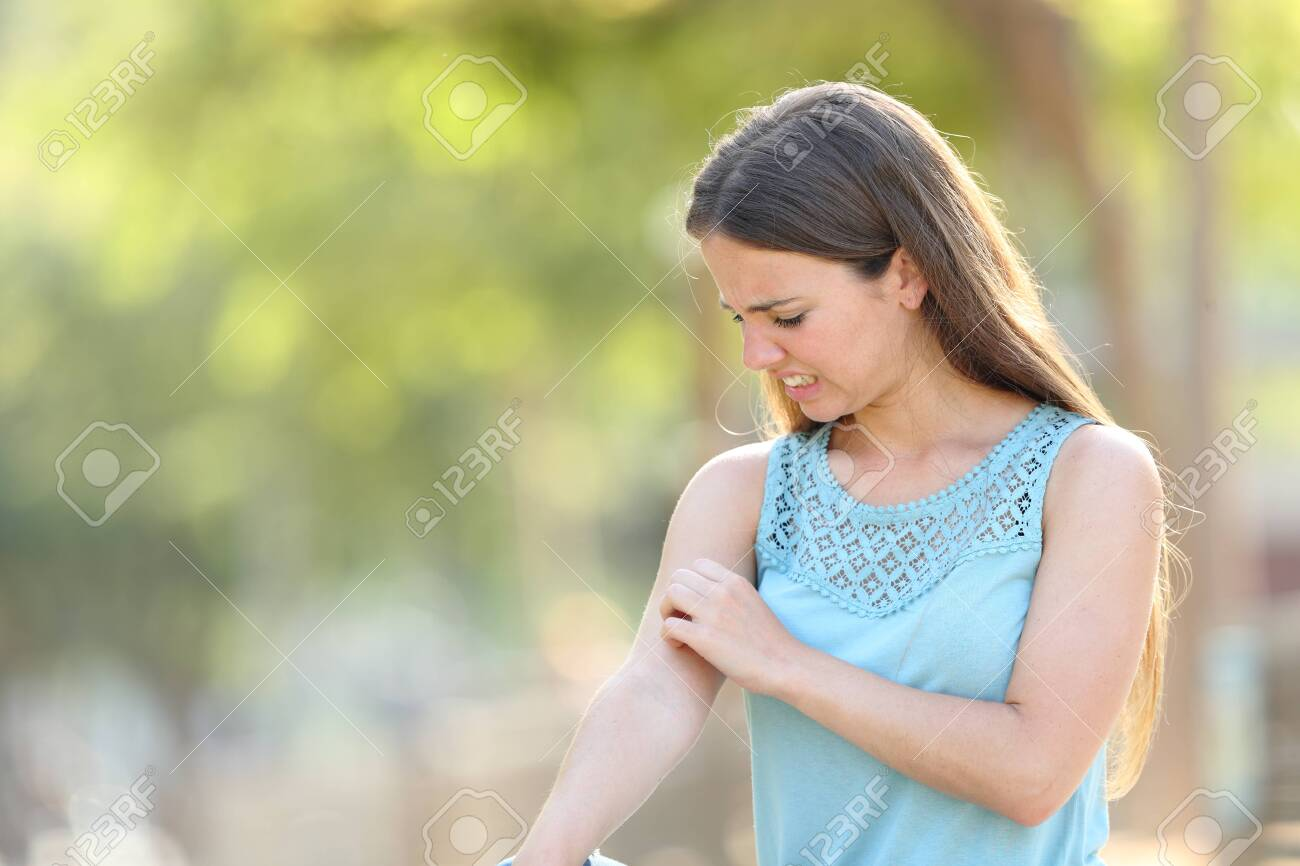 Woman scratching arm because it stings in a park with a green background - 126474878