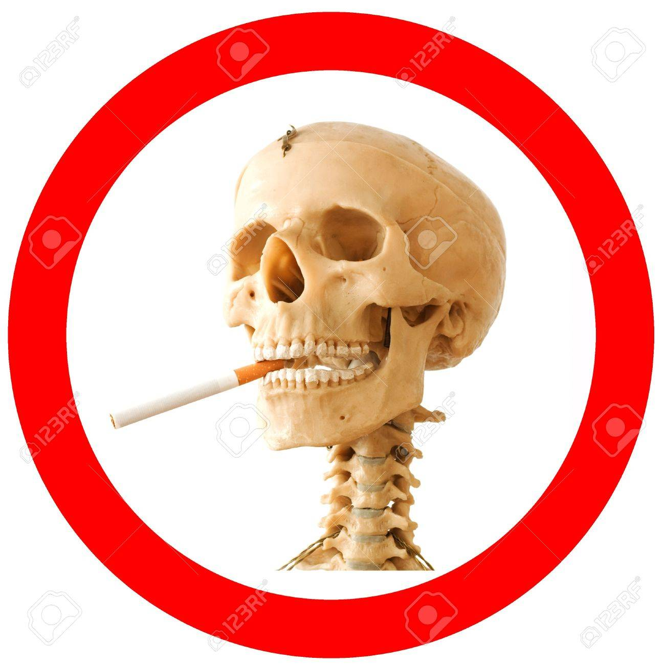 Smoking kills sign with skeleton Stock Photo - 6250906