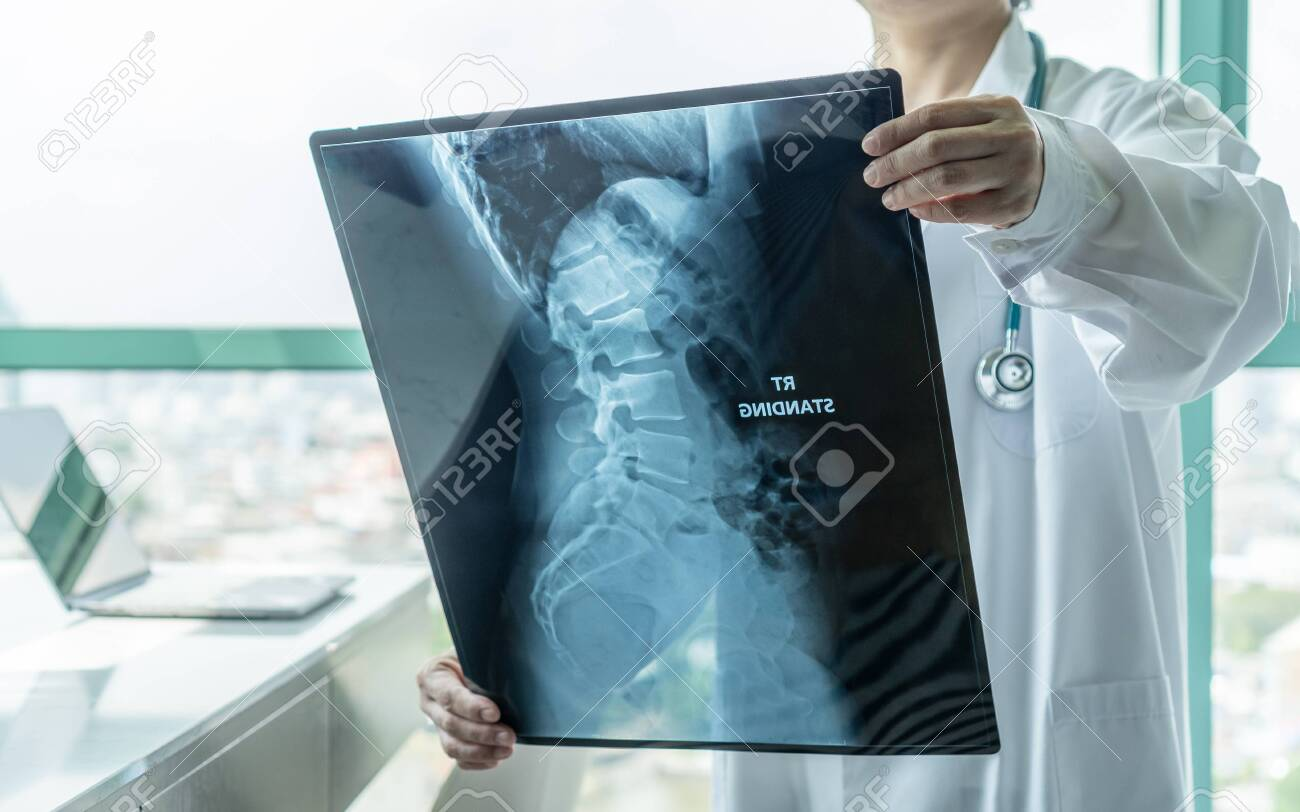 Surgical doctor looking at radiological spinal x-ray film for medical diagnosis on patient's health on spine disease, bone cancer illness, spinal muscular atrophy, medical healthcare concept - 132026778