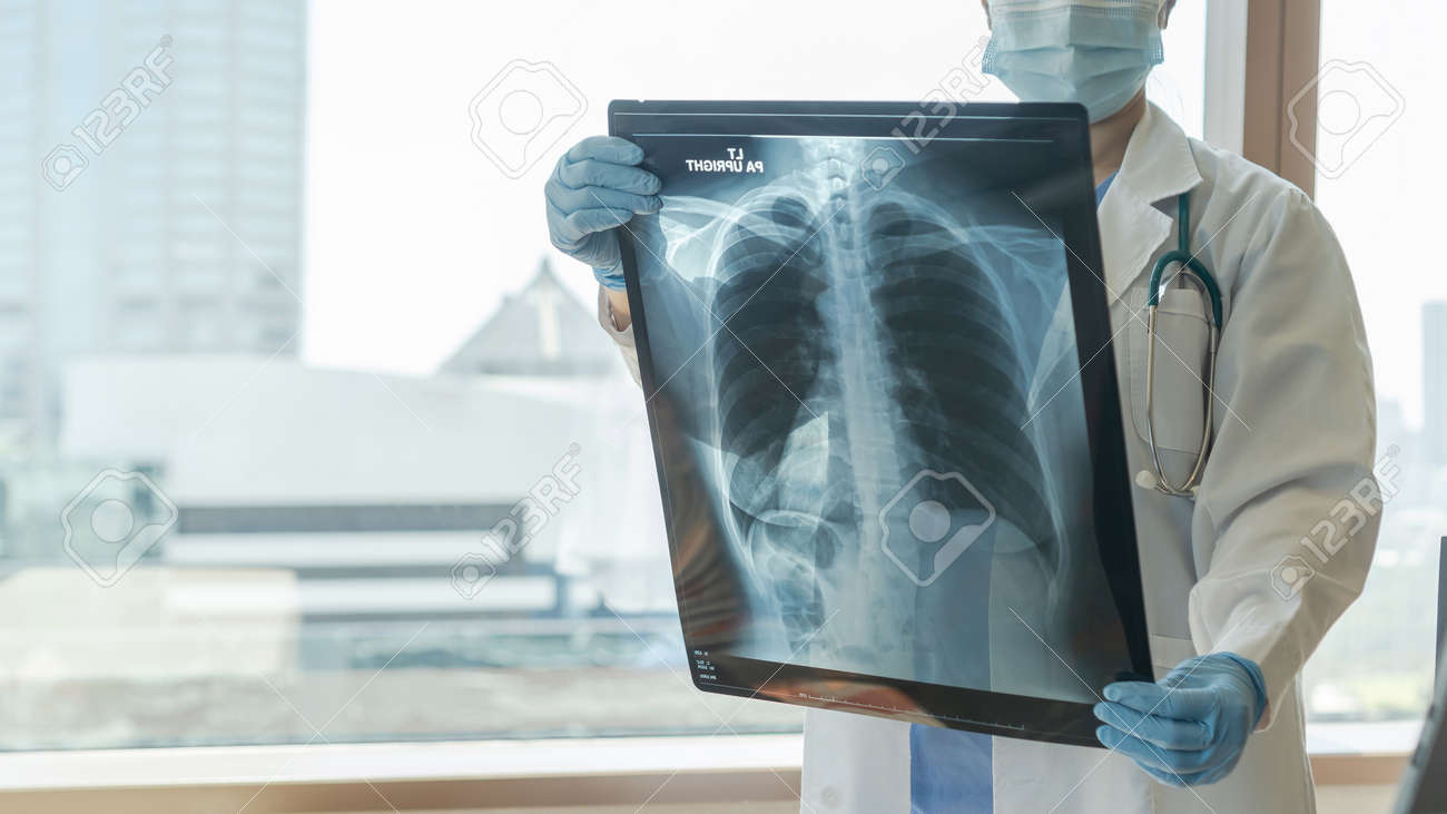 Doctor diagnosing patient's health on asthma, lung disease, COVID-19 or bone cancer illness with radiological chest x-ray film for medical healthcare hospital service - 157799348