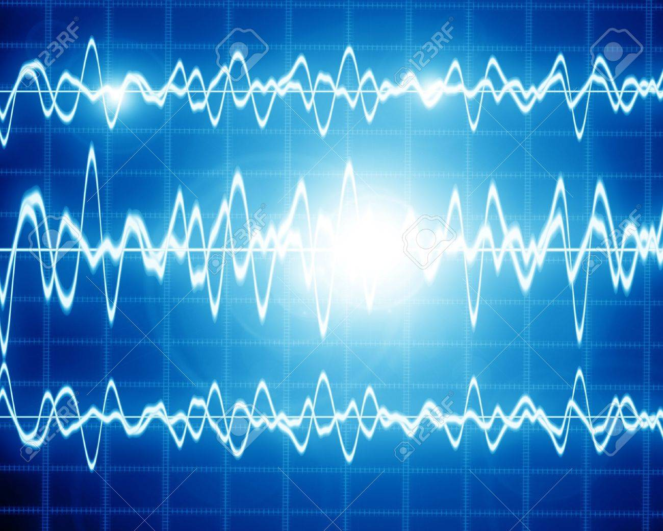 sound wave on a bright blue background Stock Photo - 14949284