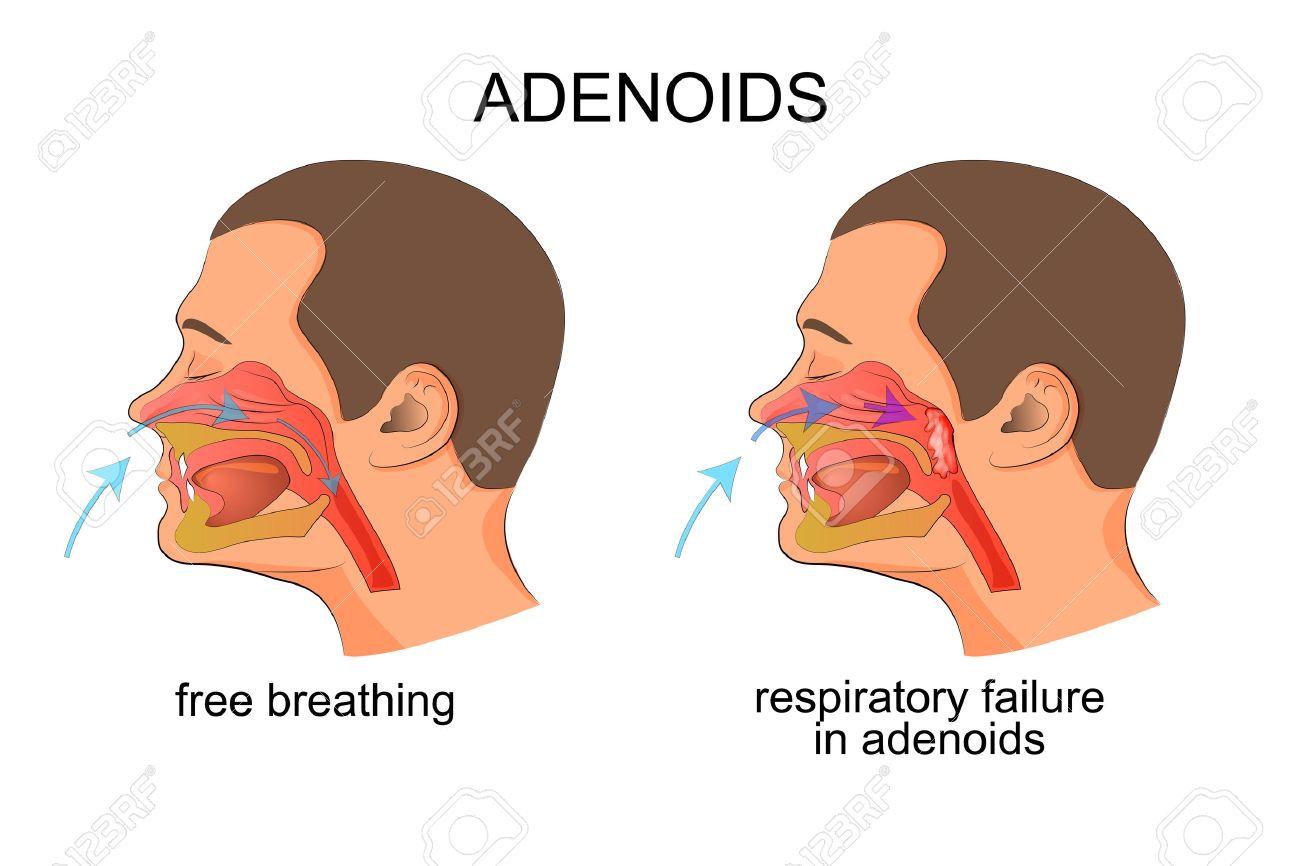 Adenoids Stock Photos Royalty Free Adenoids Images