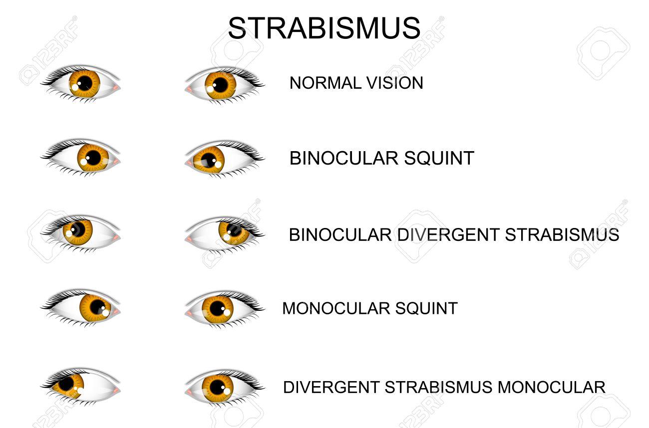 健康な目 斜視の種類のイラスト のイラスト素材 ベクタ Image