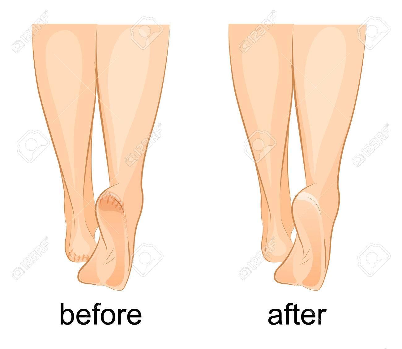 女性の足はひびの入ったかかとのイラストと健康のイラスト素材ベクタ