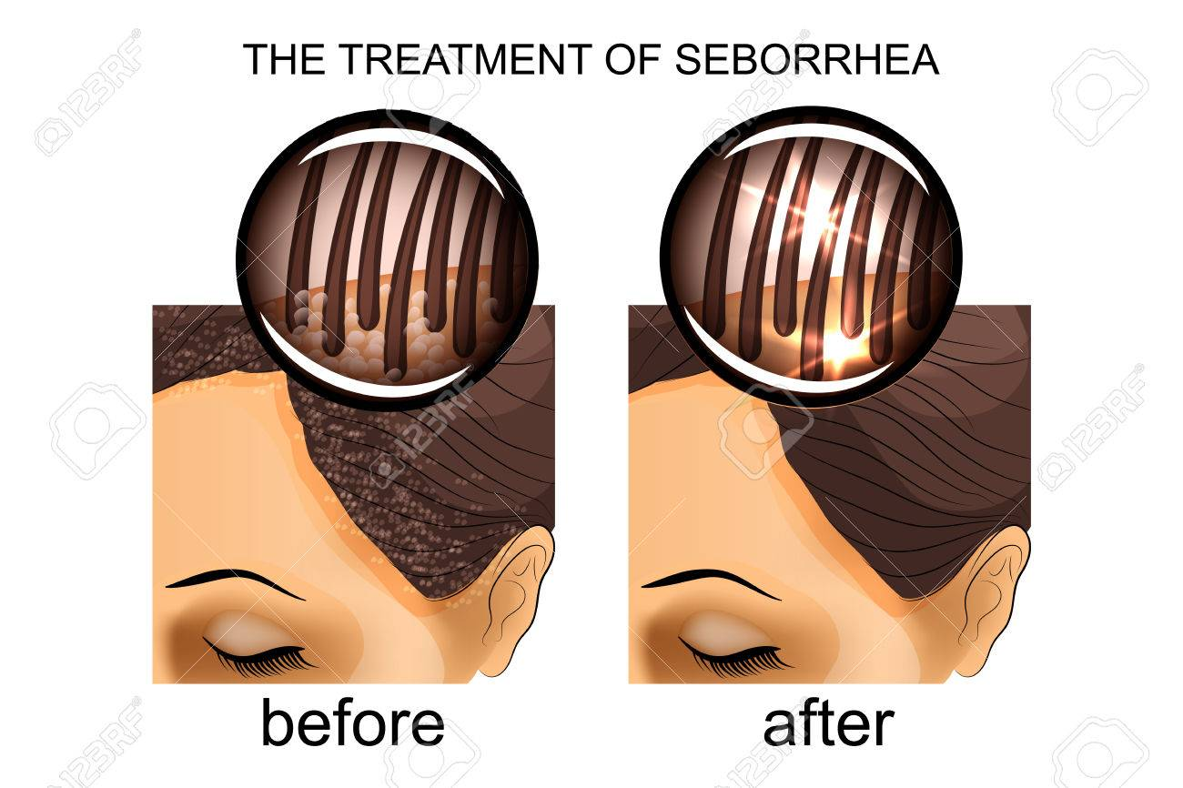 Seborrhea of the scalp, treatment