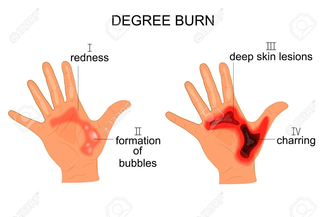 vector illustration of burn the hands of four degrees - 72205095