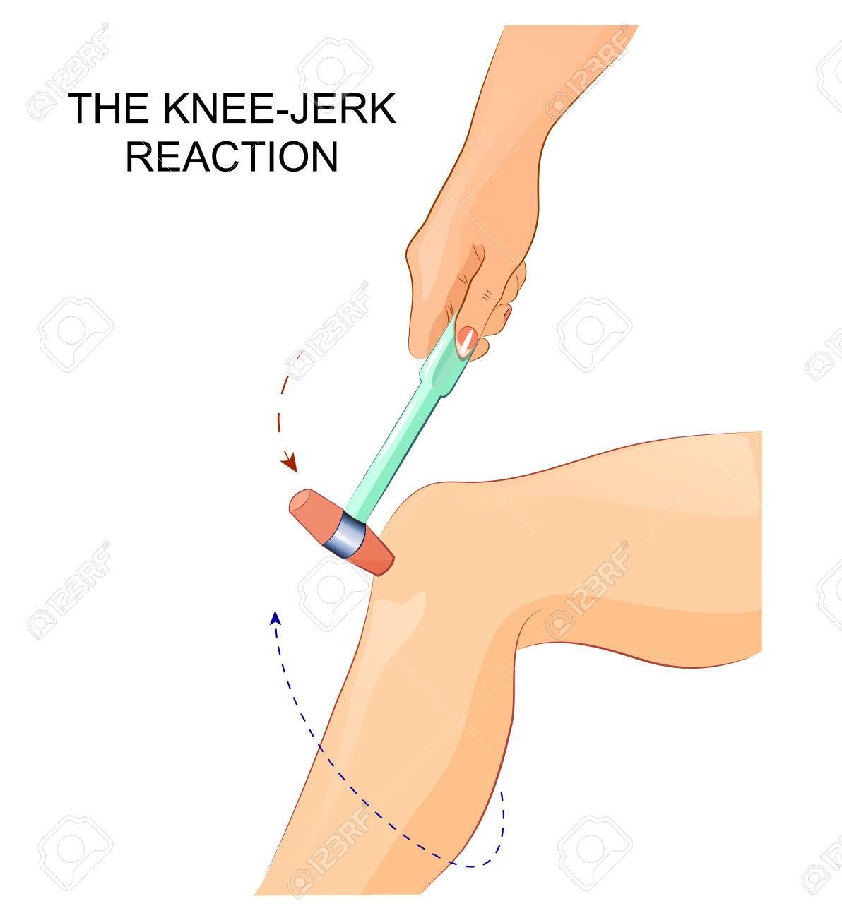 膝の反射神経でのイラストのイラスト素材ベクタ Image 72968492