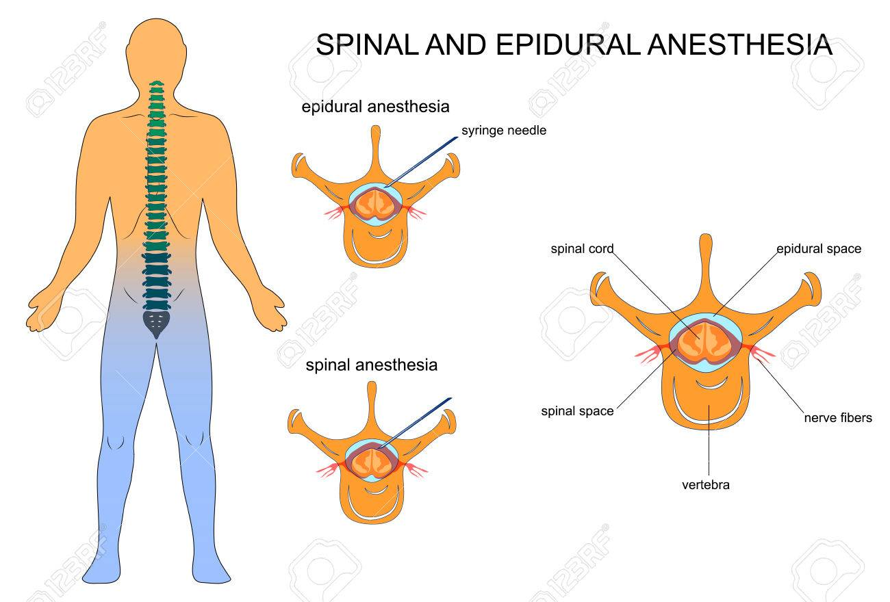 A Vector Illustration Of Epidural And Spinal Anaesthesia Royalty