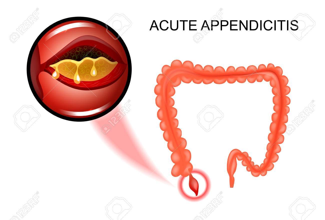 Ilustración Vectorial De Apendicitis Aguda, La Inflamación Del ...