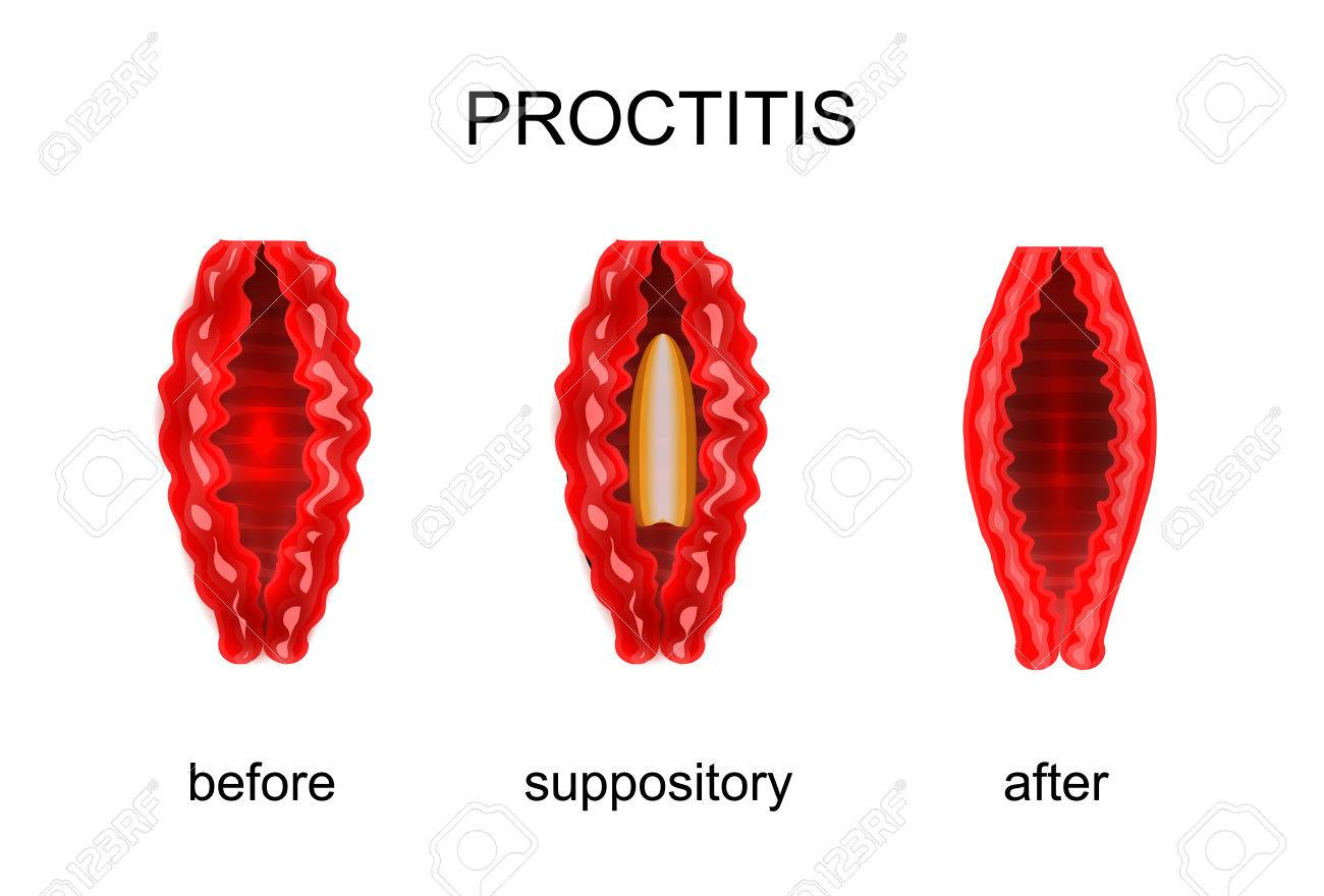 Image result for proctitis