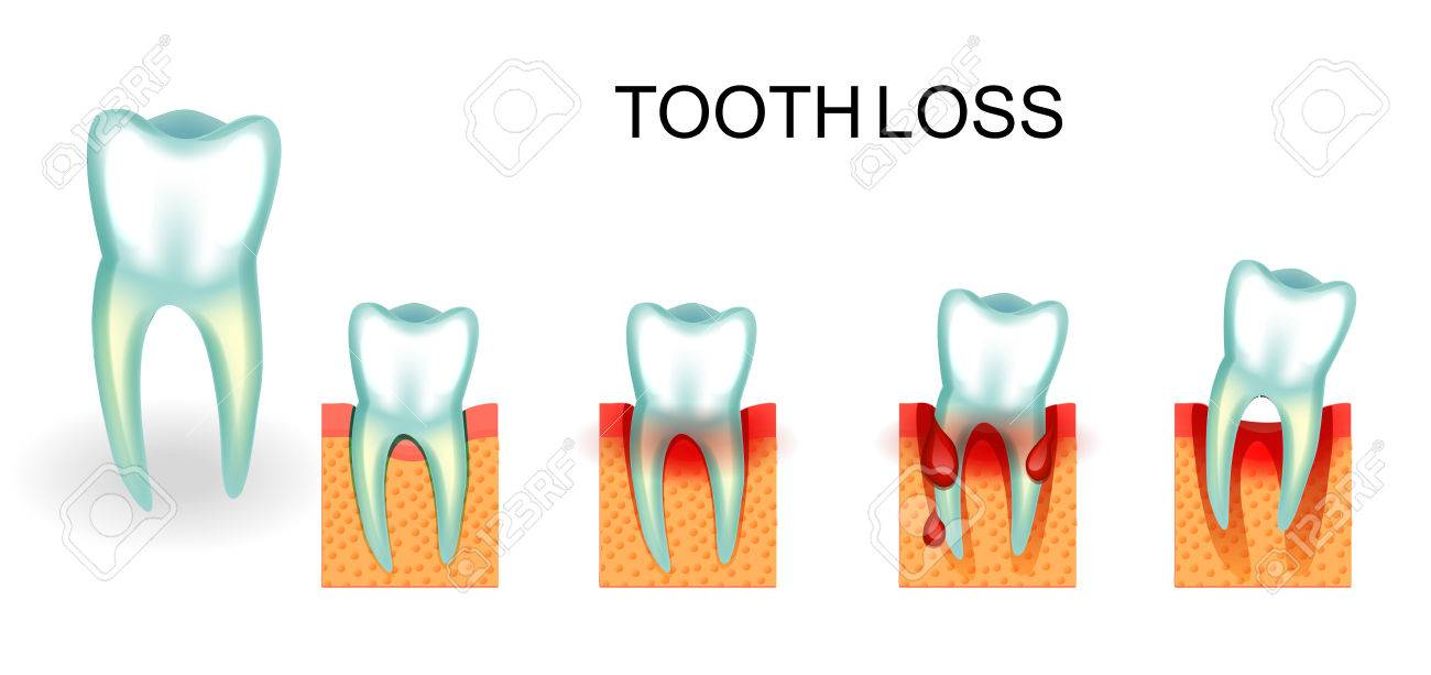 vector illustration of healthy and diseased tooth. bleeding gums. tooth loss - 80625711