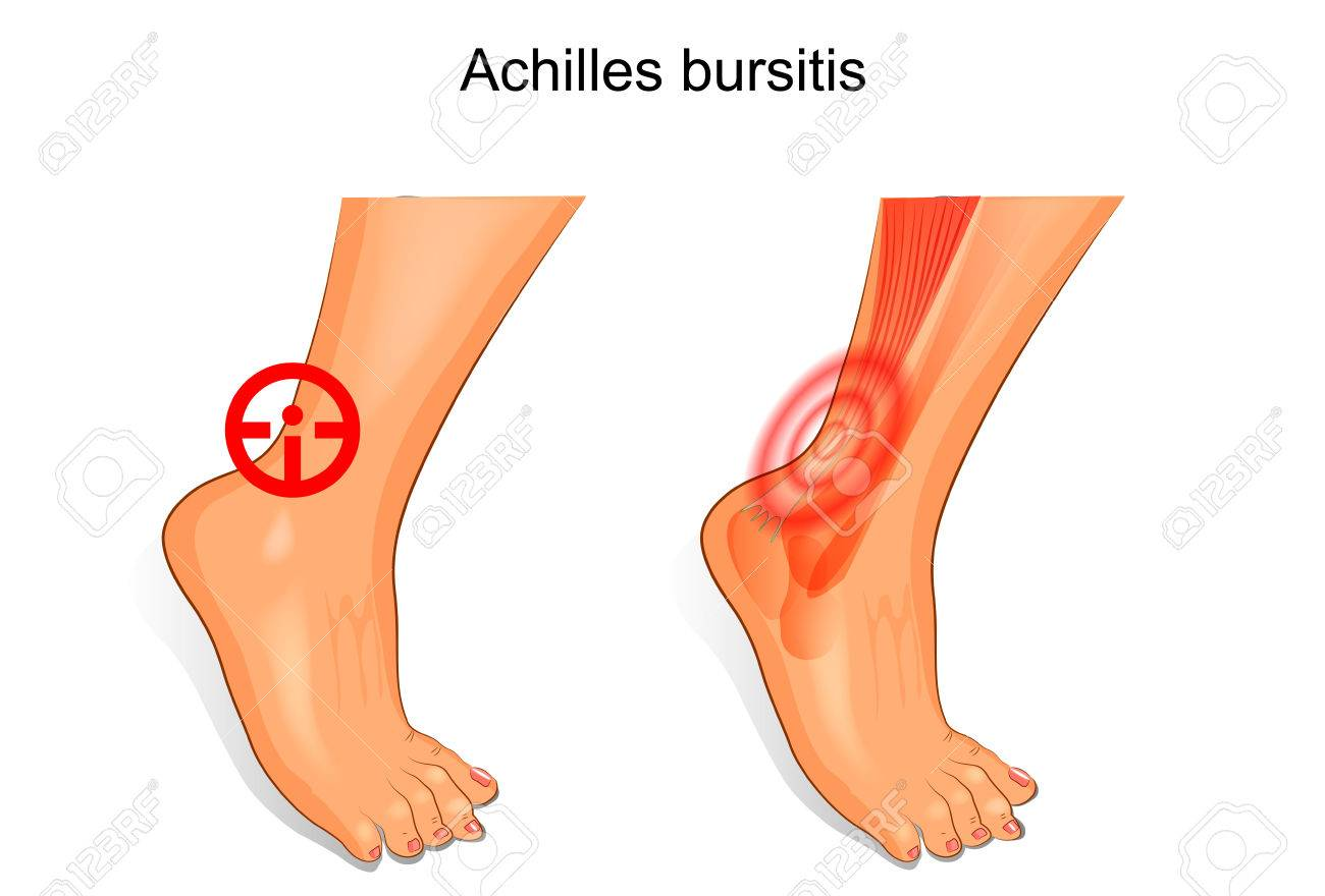 Vector Illustration Of A Foot Is Affected By Achilles Bursitis ...