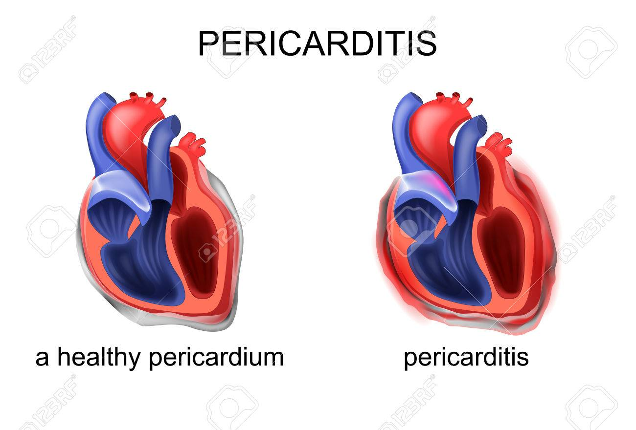 Vector Illustration Of Heart Healthy Pericardium Pericarditis