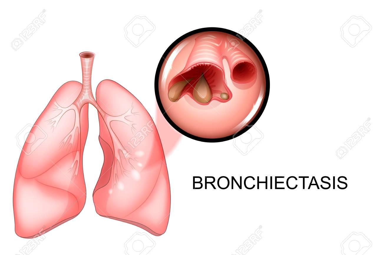 症 気管支 拡張