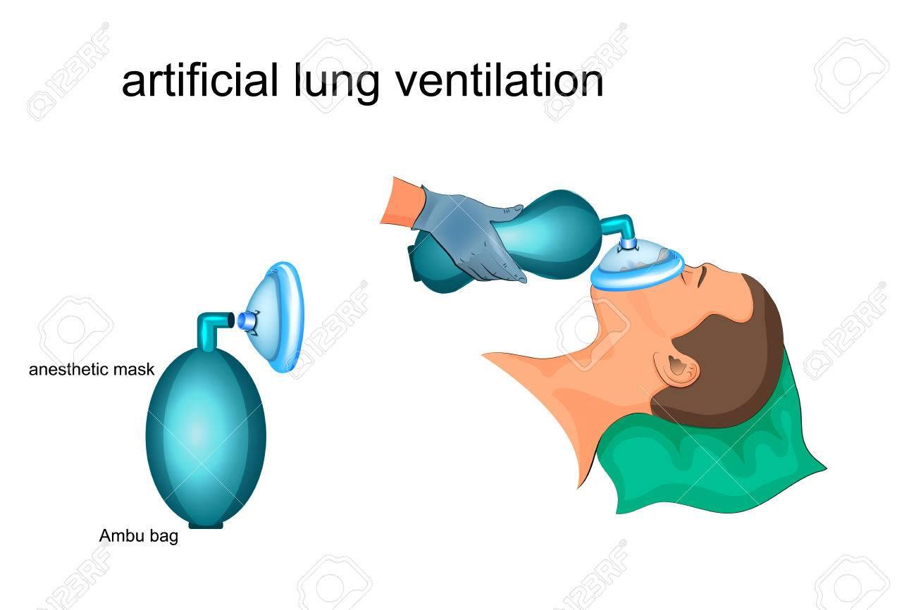 Vector illustration of artificial ventilation by ambu bag and masks imagens vector illustration of artificial ventilation by ambu bag and masks ccuart Images
