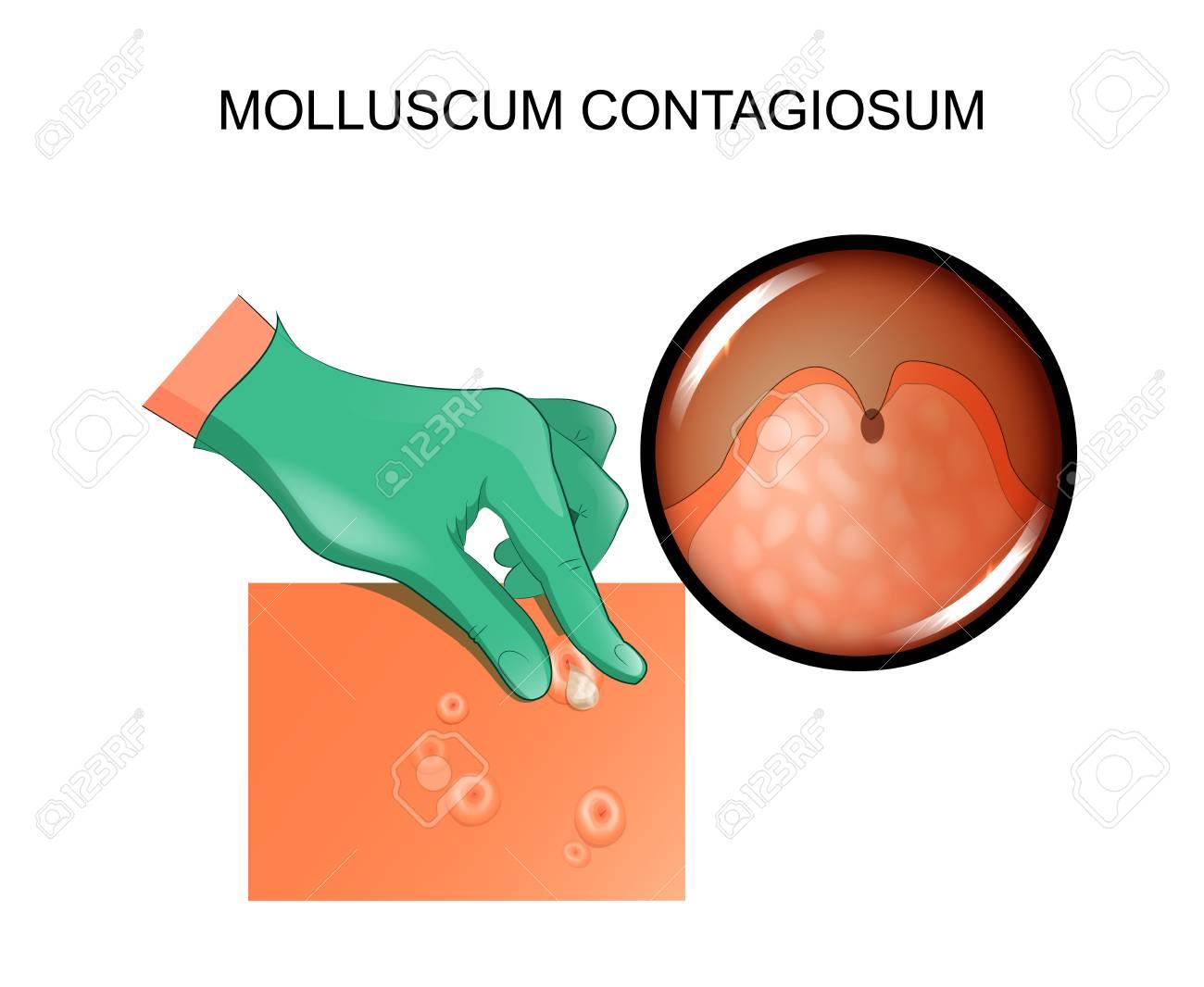 Ilustración Vectorial Del Molusco Contagioso. Infección De La Piel ...