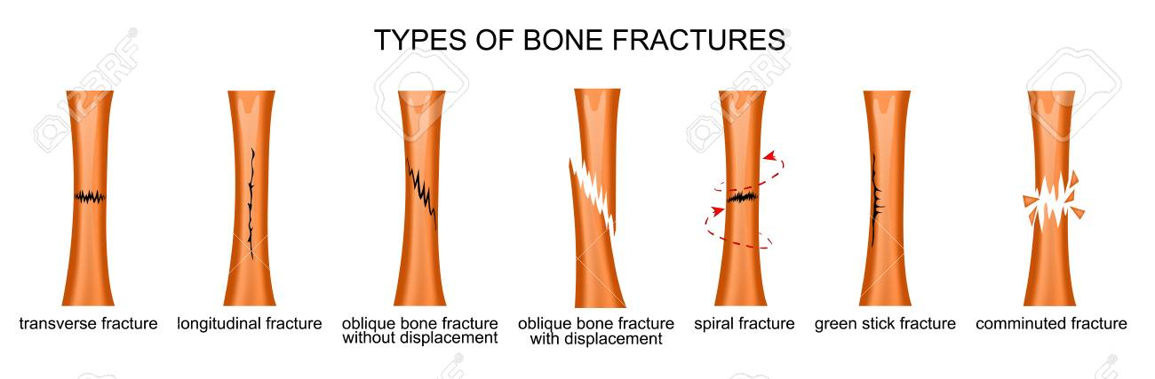 Vector Illustration Of The Types Of Bone Fractures Royalty Free