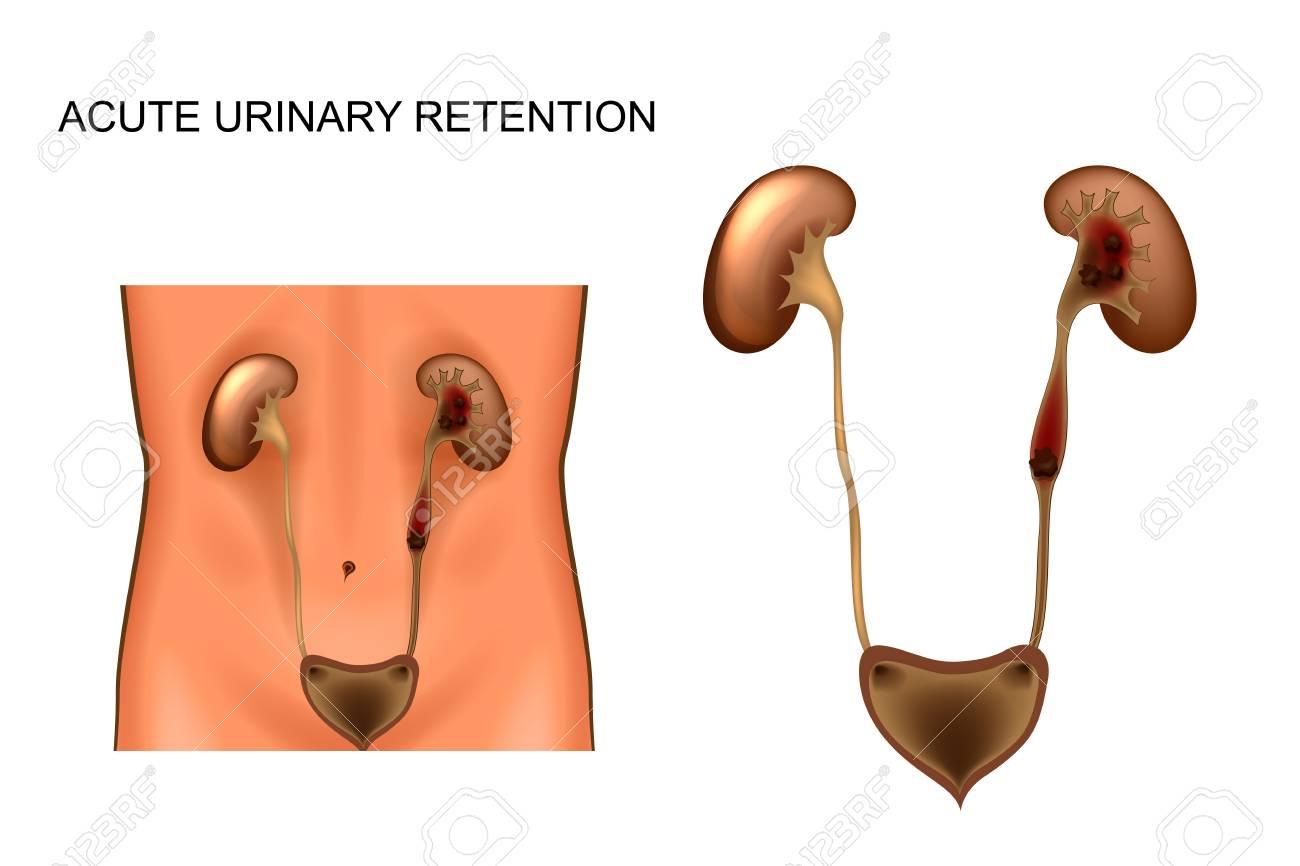 Acute Urinary Retention, Kidney Stones Vector Illustration. Royalty ...