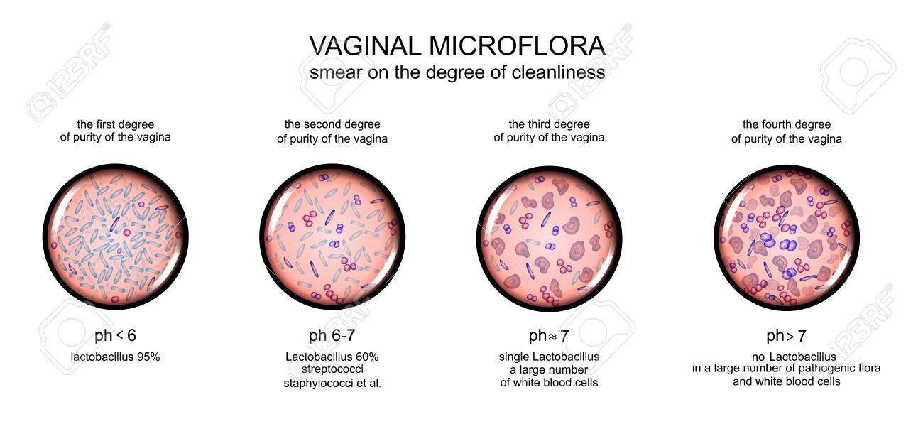 Vector - vector illustration of a vaginal microflora. degree of purity of  the vagina
