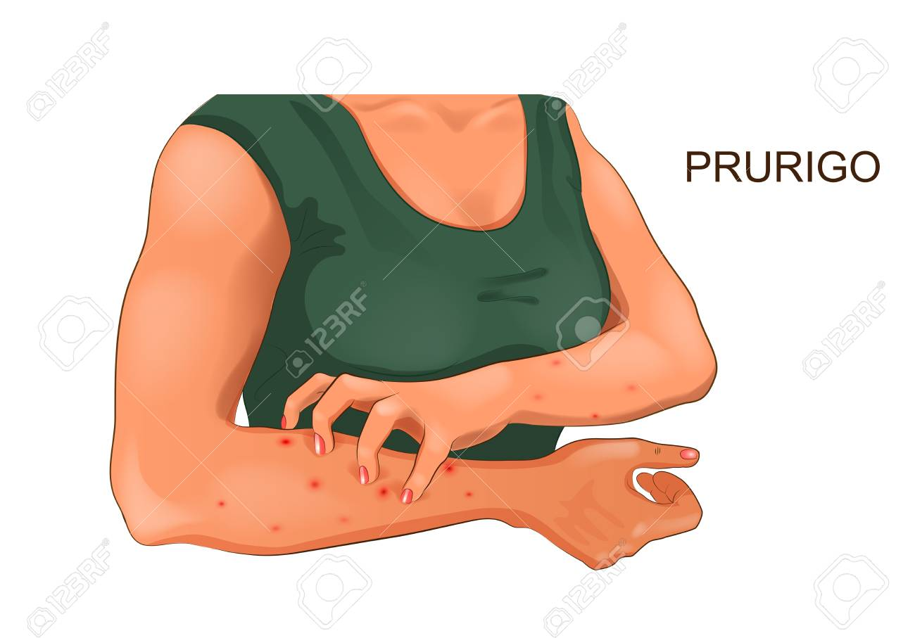 vector illustration of allergic itching of the skin - 114782405