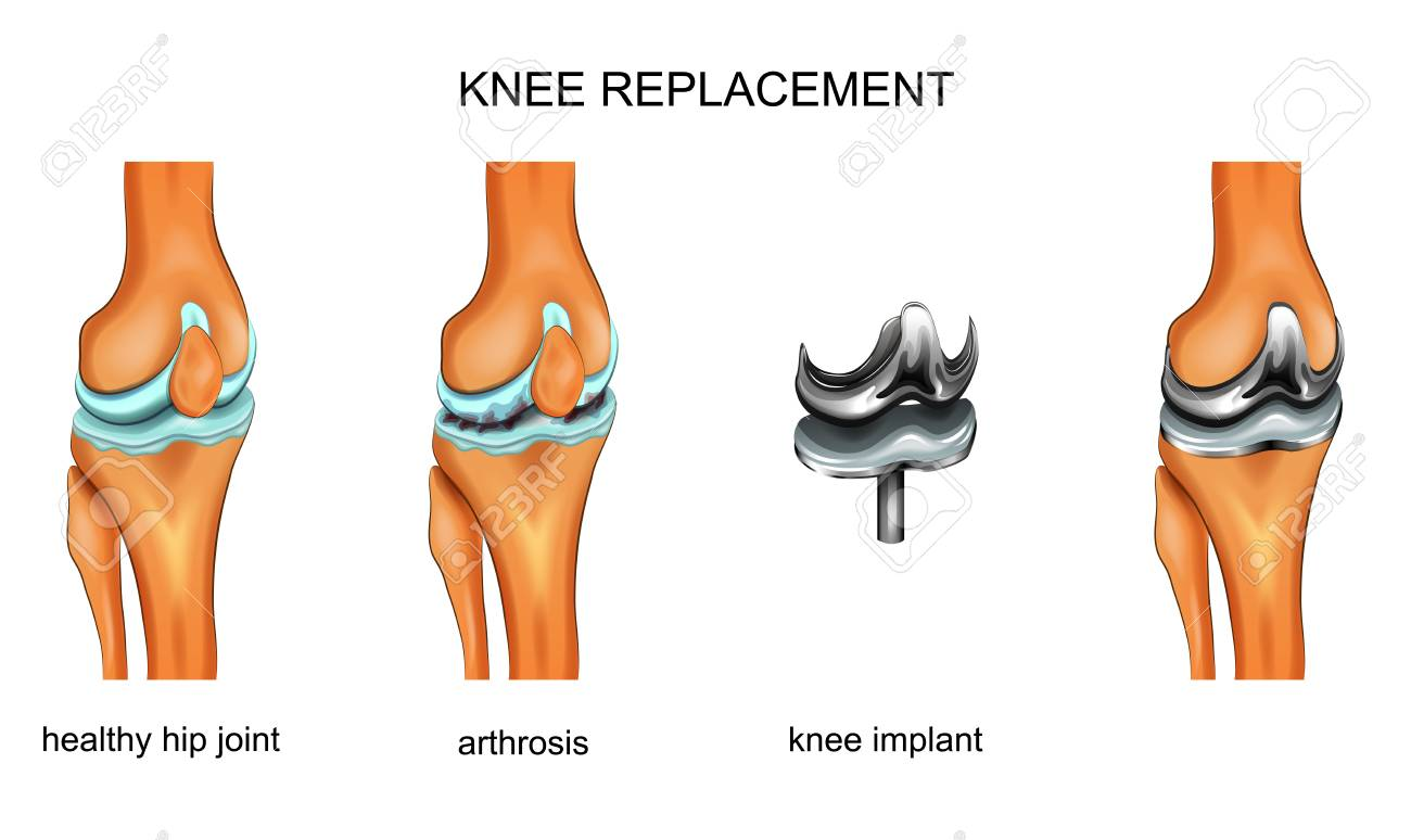 vector illustration of a total knee replacement - 106289894