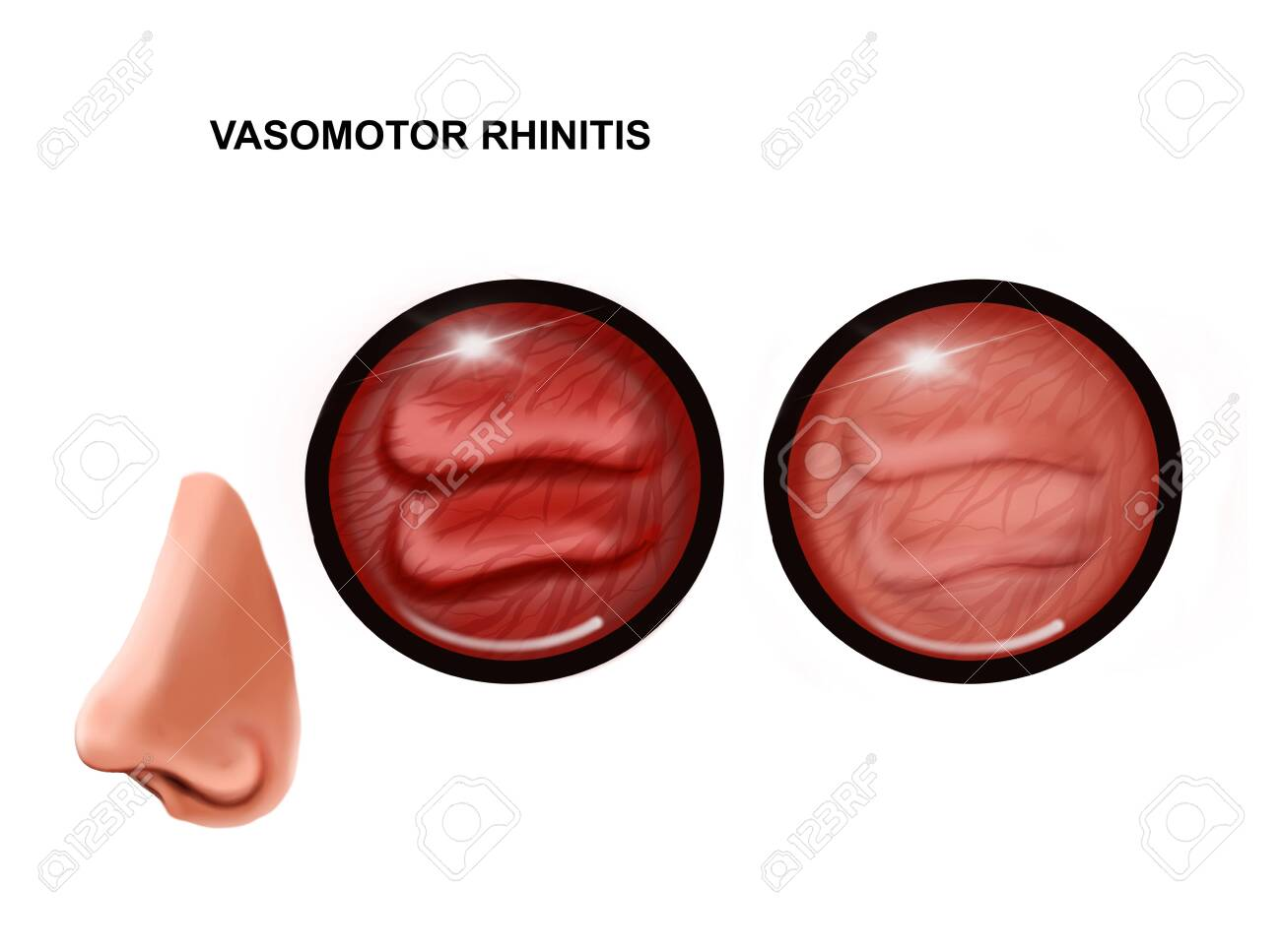 illustration of vasomotor rhinitis of the nasal mucosa. healthy and inflamed - 138142251