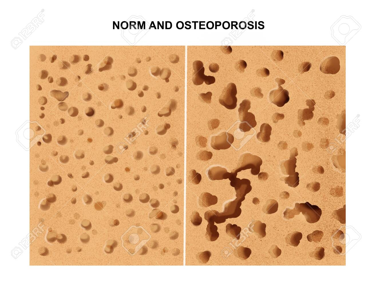 illustration of the Process of osteoporosis - 138142253