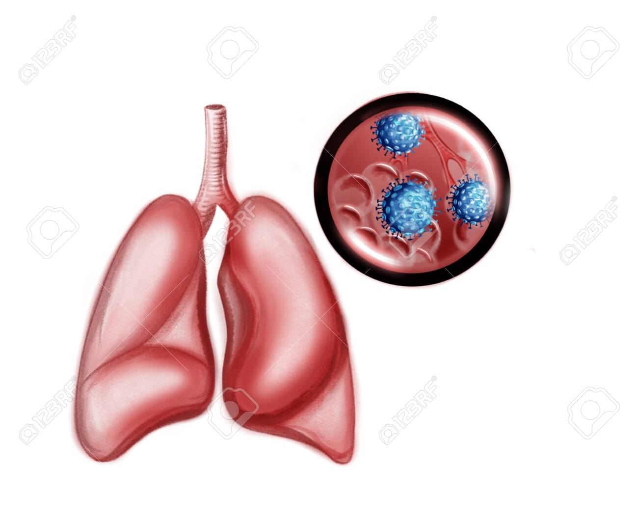 Illustration of the human lungs and coronavirus - 140310112