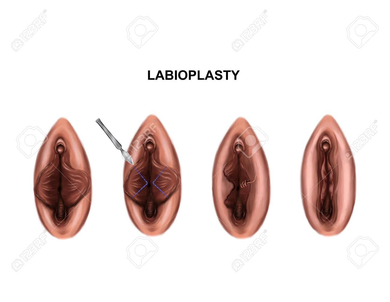 Illustration of the surgery to reduce the minora - 143939612