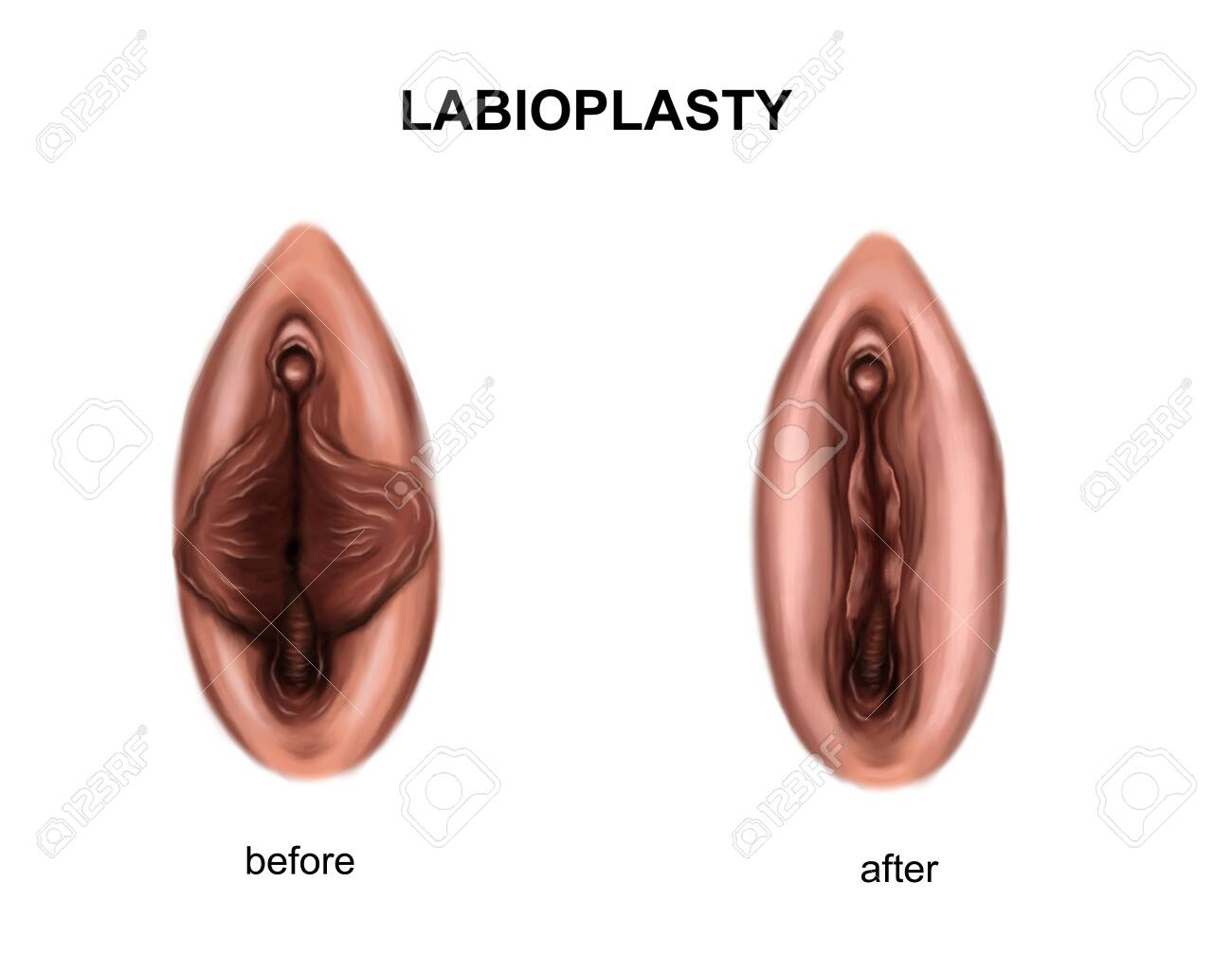 Illustration of the labioplasty. Before and after surgery - 143939615
