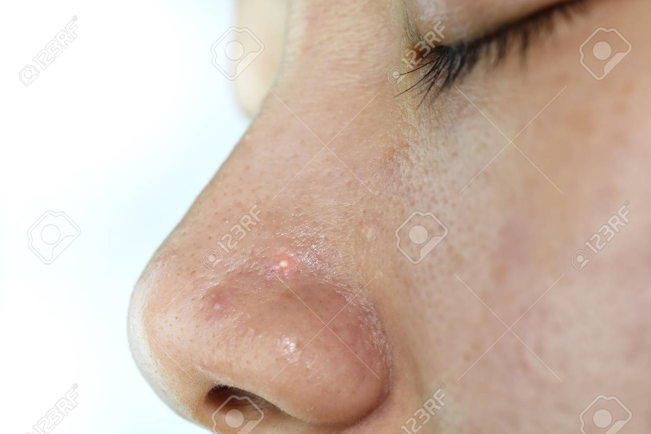 Skin Problem With Acne Diseases Close Up Woman Face With Whitehead Stock Photo Picture And Royalty Free Image Image 89443645