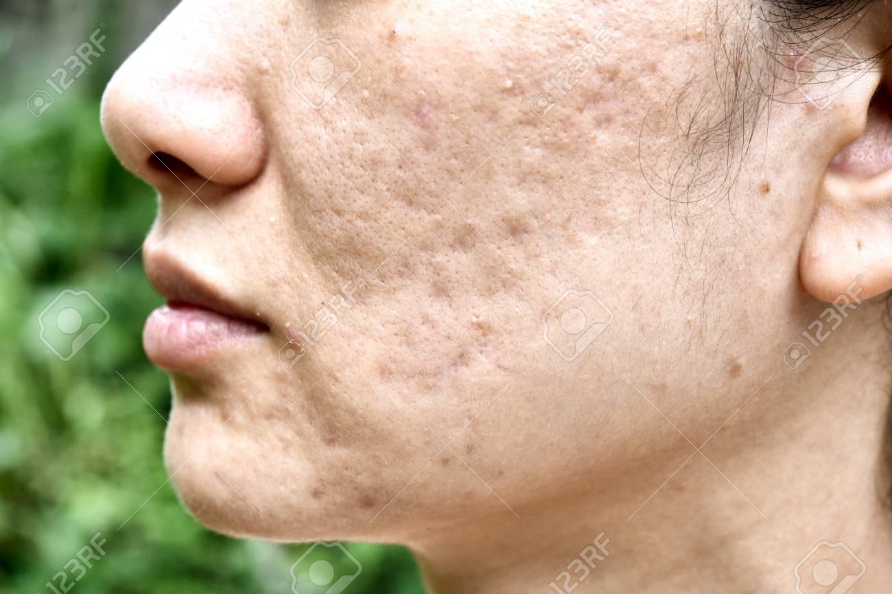Skin problem photos