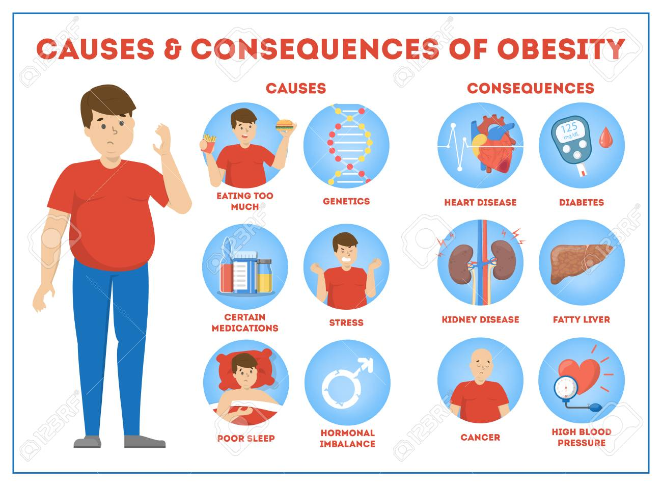 Obesity causes and consequences infographic for overweight - 116897627