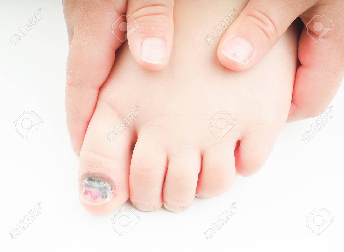 Маленькие ногти на ногах