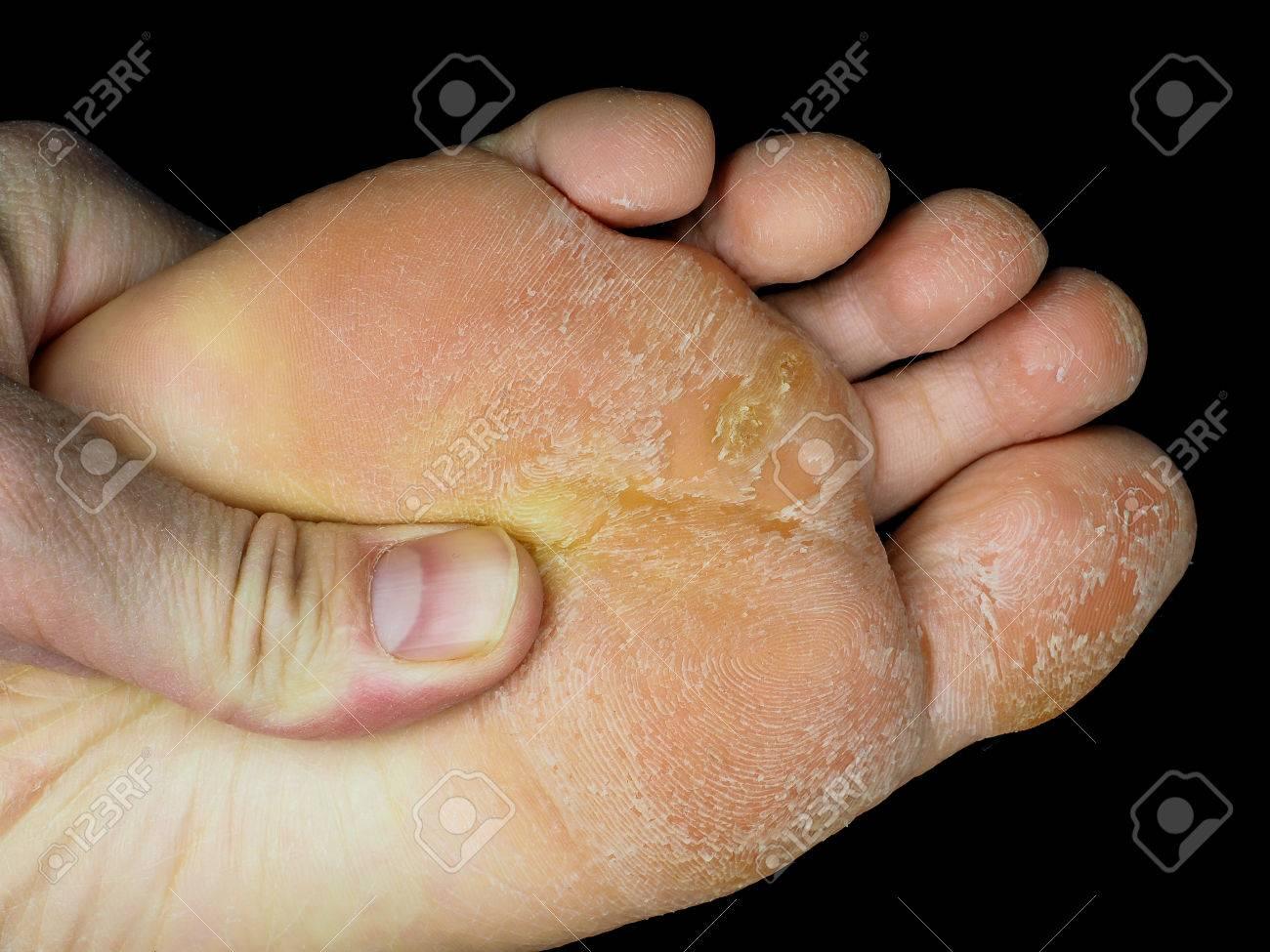 foot skin peeling off