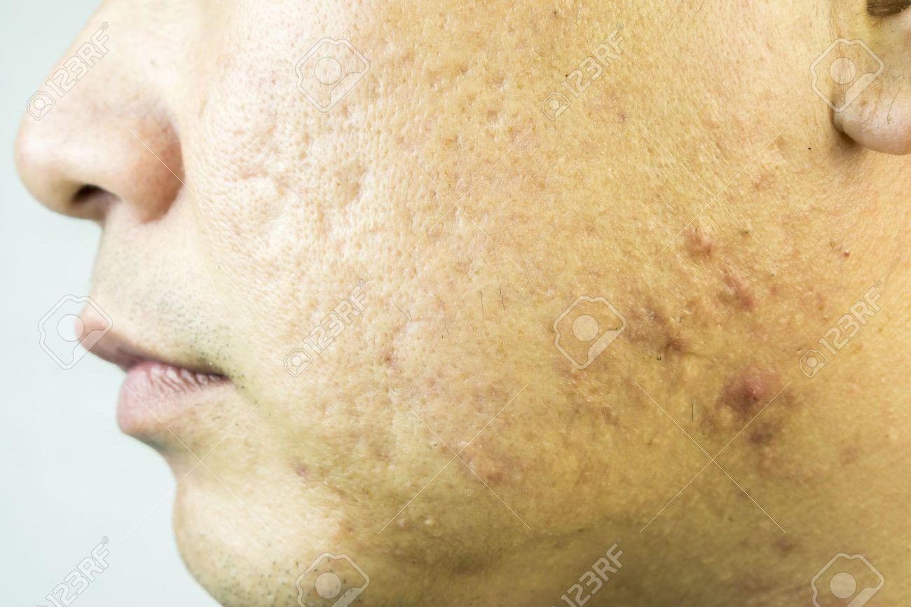 ニキビ 頬 左頬にばかりニキビができる原因とは?必見の対策もチェック! |