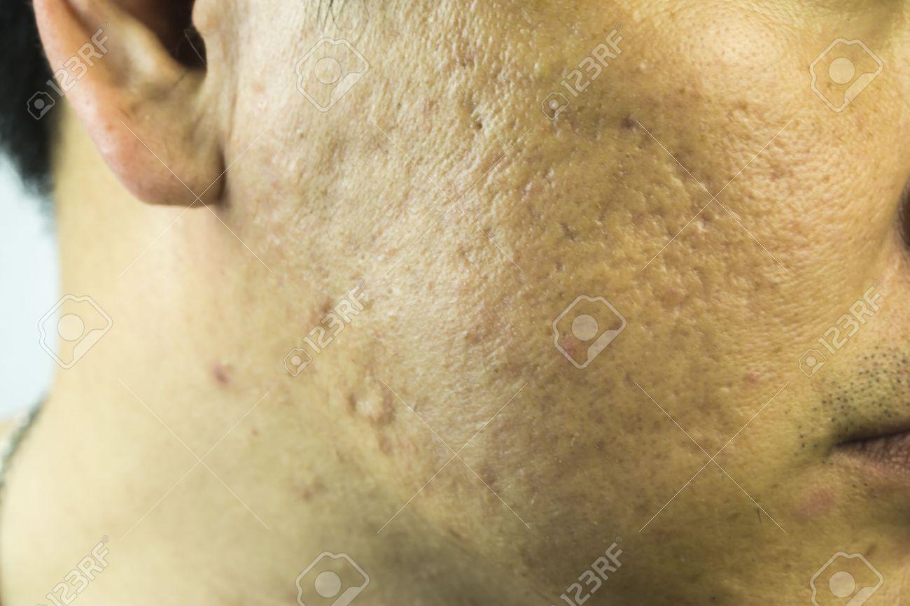 ニキビ 頬