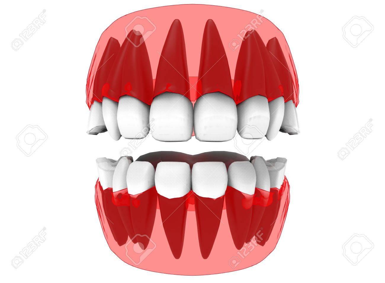 3D-Darstellung Der Geschlossenen Zahnfleisch Mit Den Zähnen Und Der ...
