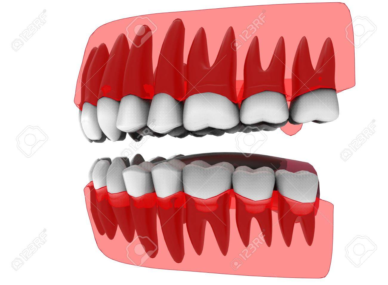 3d Illustration Of Closed Gum With Teeth And Tongue. Icon For ...