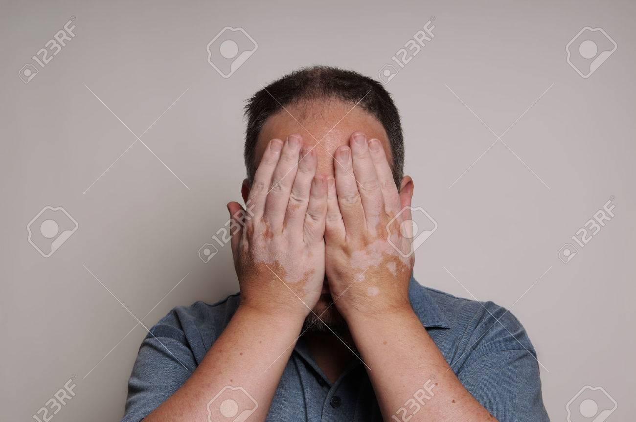 man affected by Vitiligo skin condition hiding his face - 31364343