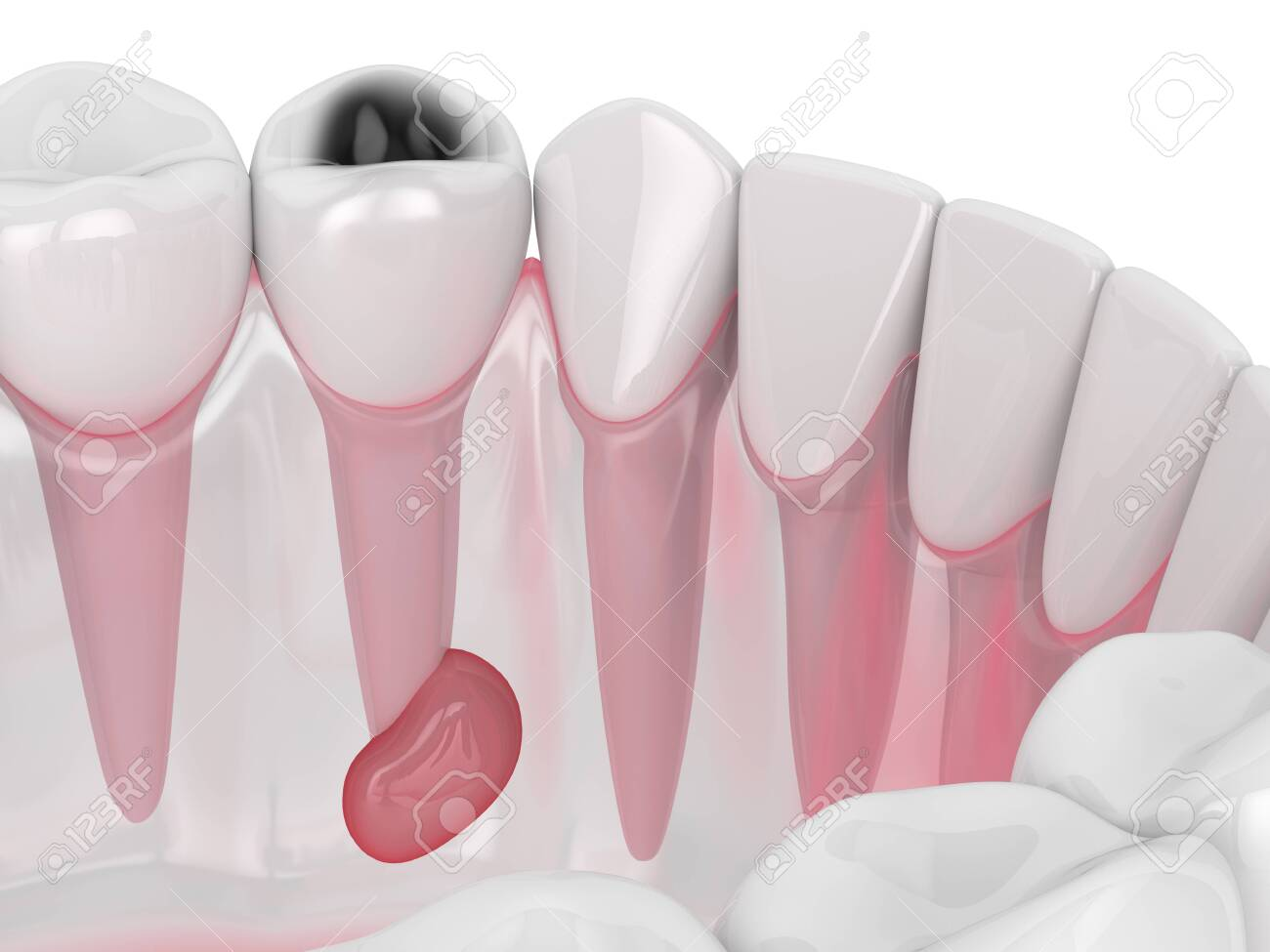 3d render of jaw with tooth cavity and cyst. Dental problem concept. - 134438432