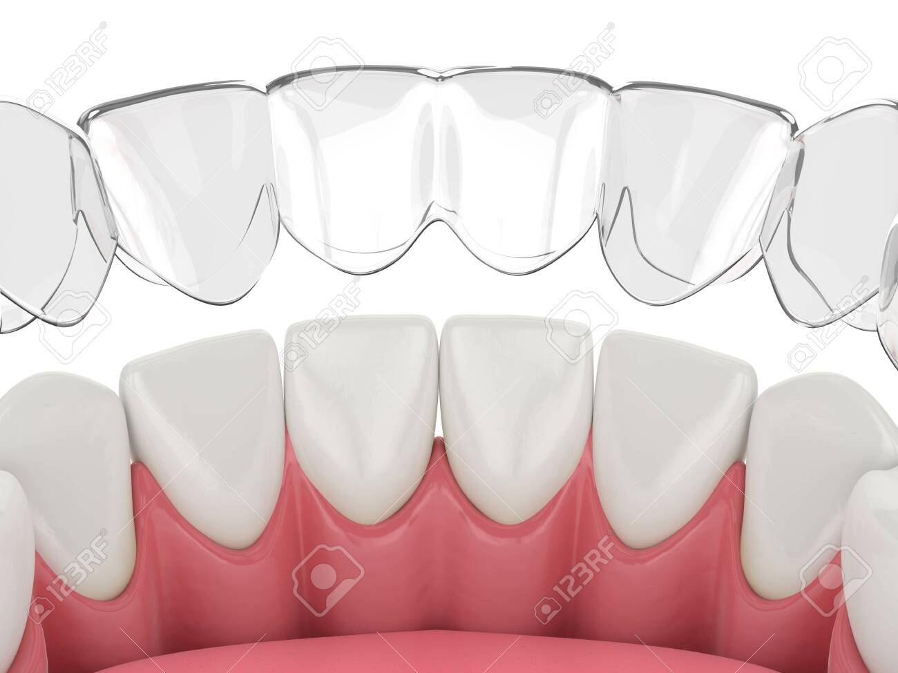 3d render of invisalign removable and invisible retainer with lower jaw over white background - 141655928