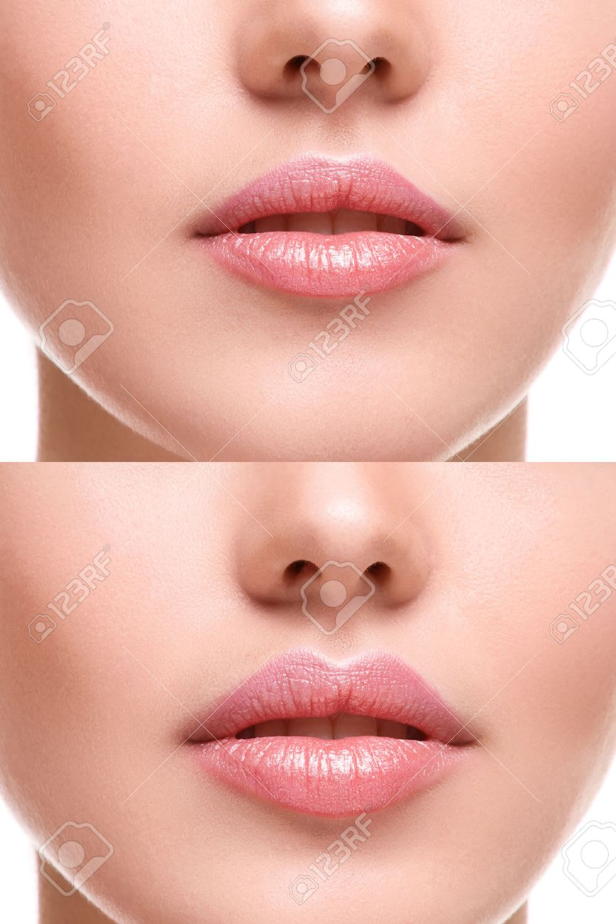 Female lips before and after augmentation - 44235153