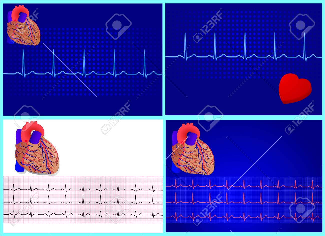 4 heart &amp, cardiograme set for design,  illustration Stock Vector - 6694606