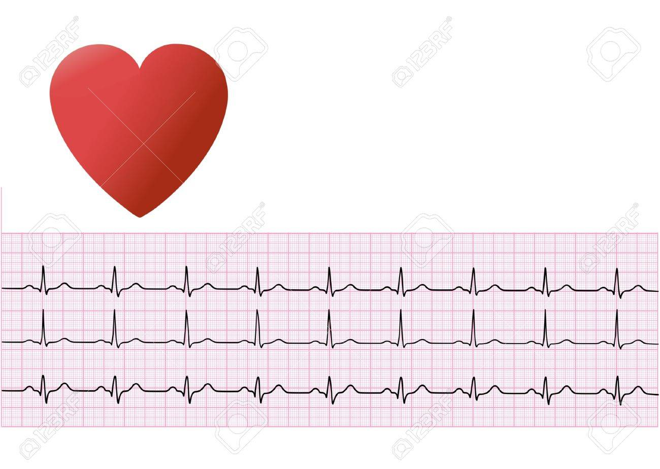 human heart and electrocardiogram - 6732341